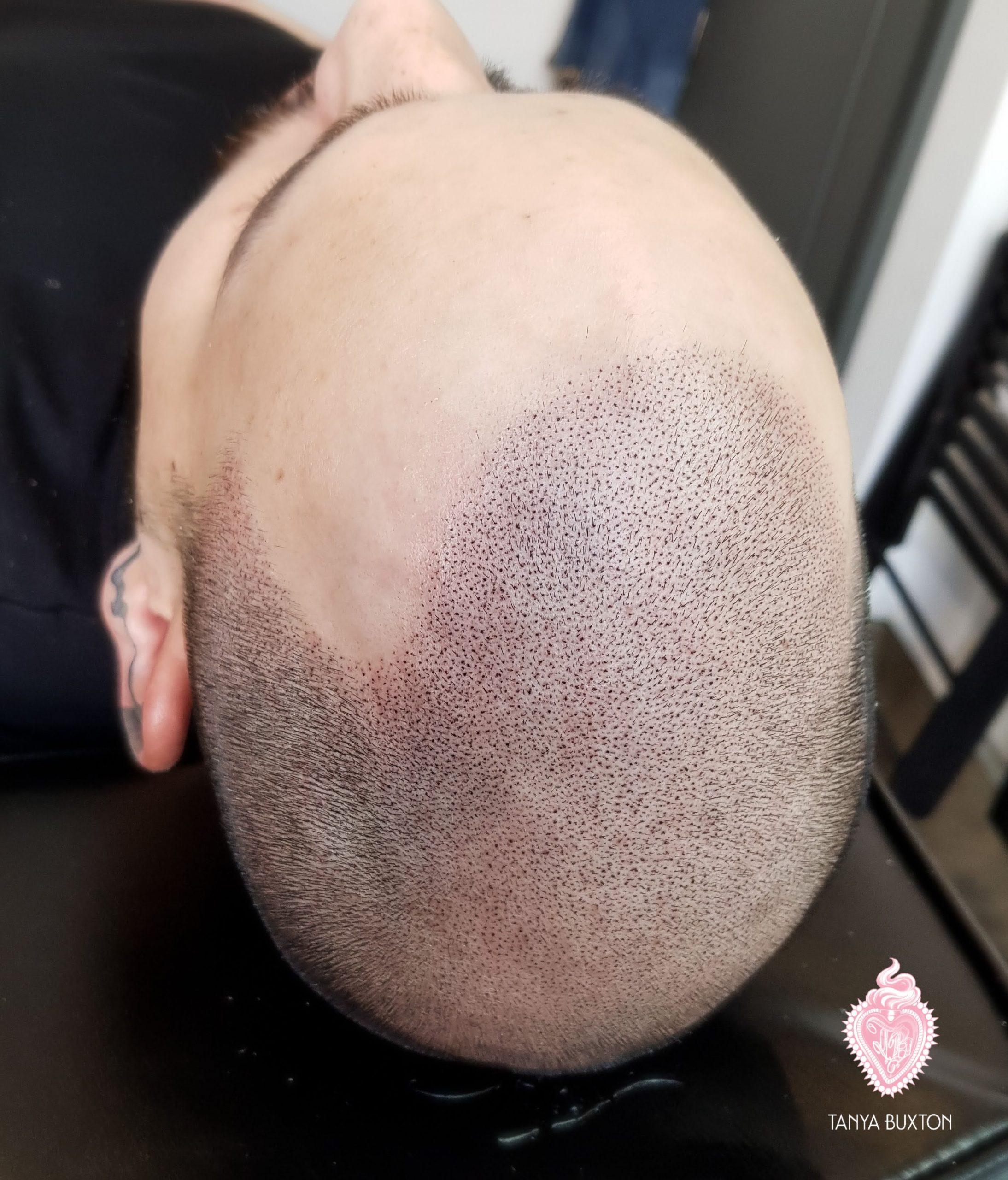 Scalp Tattoo, Male pattern baldness