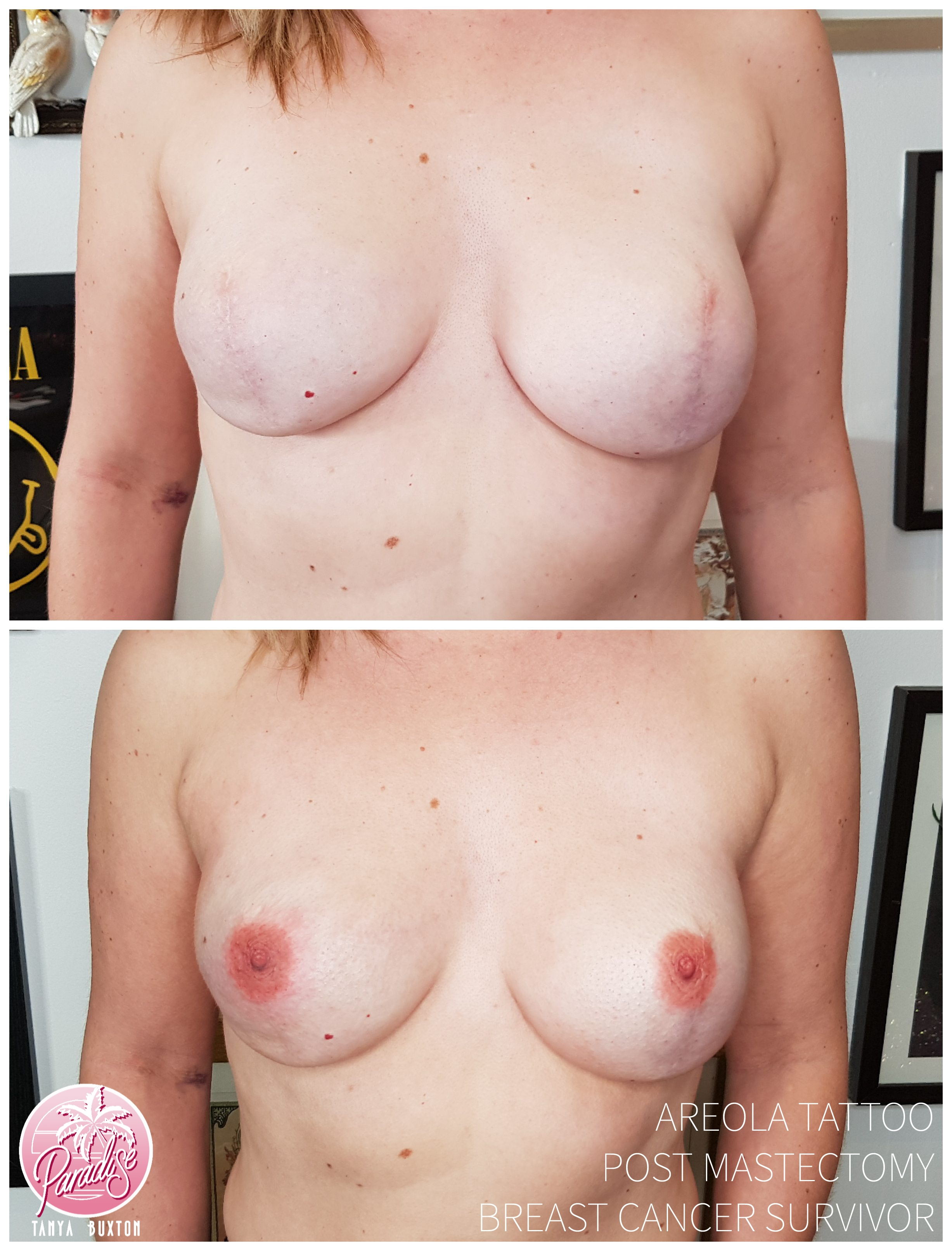 3D Realistic Areola Tattoo, post preventative mastectomy