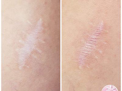 Micro Needling Scar Rejuvenation, 1 treatment.
